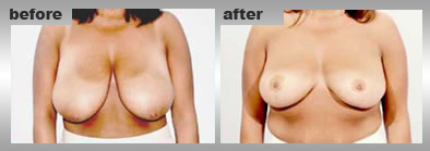 Reshape Breasts