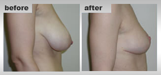 Reshape Sagging Breasts, Enlarge Breasts