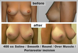 Breast Augmentation, Breast Cosmetic Surgery