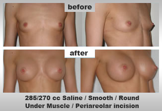 Enlargement of Breasts, sagging breasts lifted