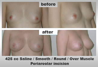 Cosmetic Surgery for Breasts Englargment