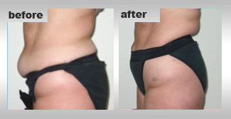 Ontario Cellulite Reduction Treatment