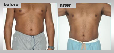 Mesotherapy Treatment, Body Sculpting, Tattoo Removal