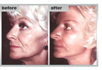 Cosmetic Face Surgery for Women, Tattoo Removal