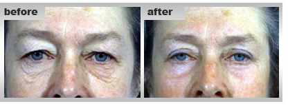 Facial Cosmetic Surgery, Feather-Lift