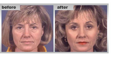 Facial Cosmetic Surgery, cosmetic surgery for face