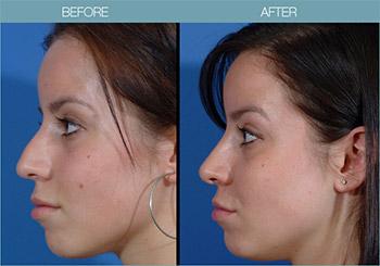 cosmetic surgeon, Toronto Rhinoplasty