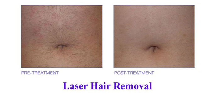 Treatment for Hair Removal