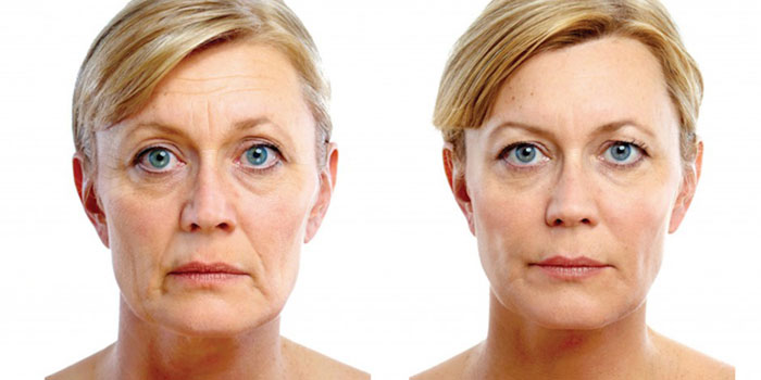 Juvederm soft Lift
