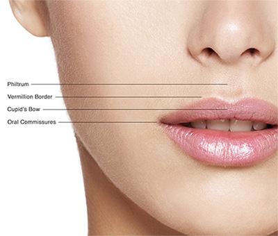 Lip Augmentation, Lip Fillers