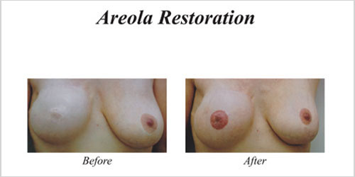 areola restoration