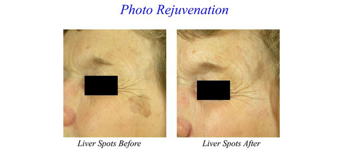 Pigmented Lesions, Age Spots