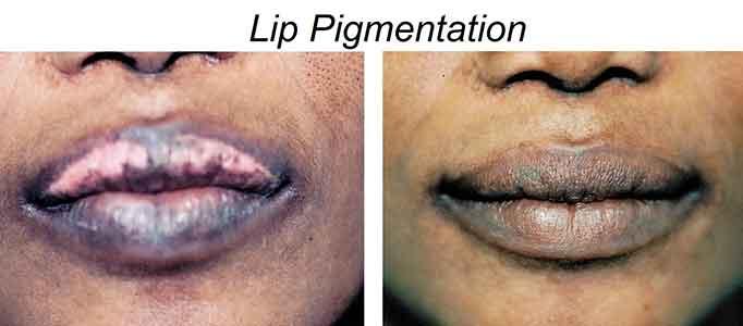 Lip Pigmentation