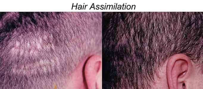 Hair Assimilation