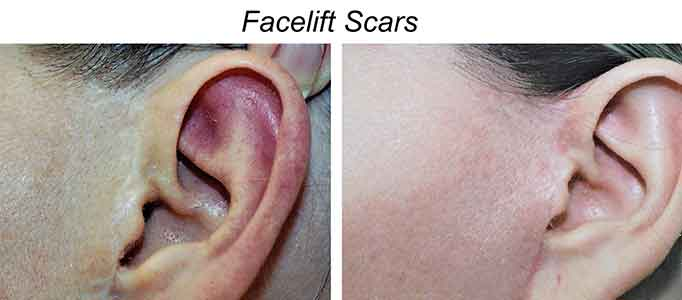 Facelift Scars