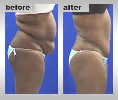 tummy tuck reduction, treatment to reduce tummy tuck