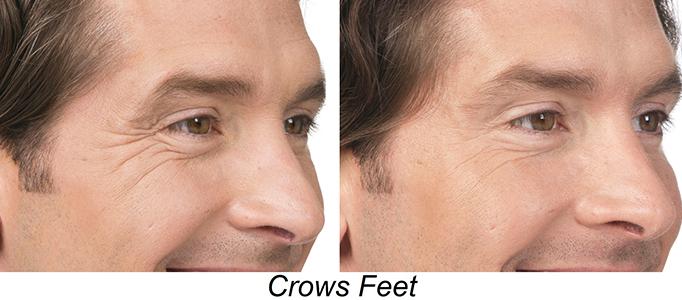 Botox Etobicoke