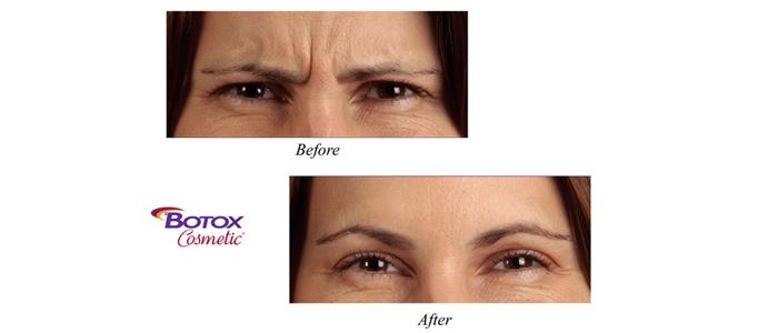Wrinkles reducing treatment through botox