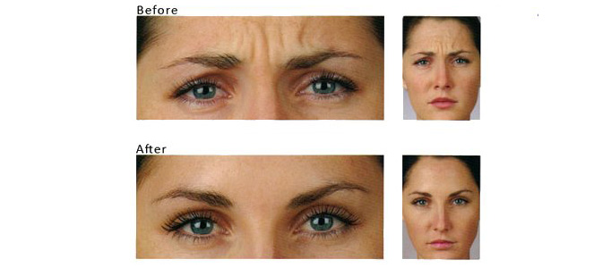 cosmetic rejuvenation