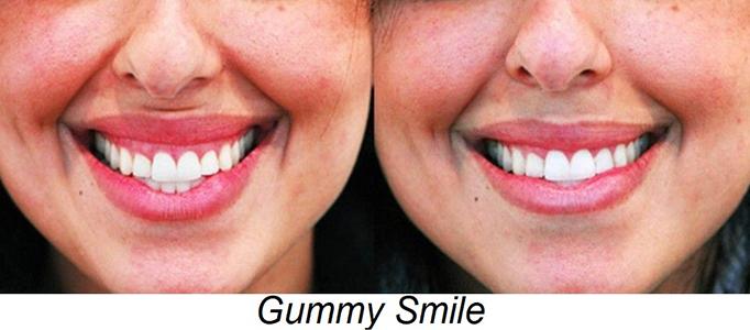botox gummy smile toronto