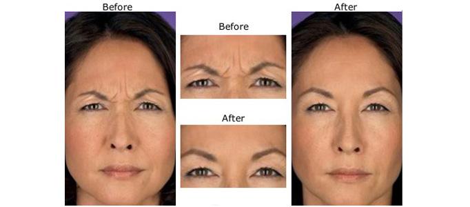 Wrinkle injection Botox treatment