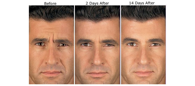 Skin Tightening and Wrinkle