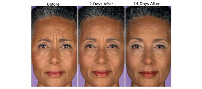 Reduce Wrinkles Torono