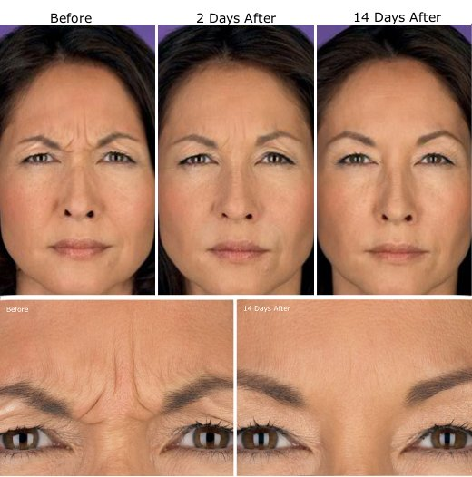 Botox Treatment Etobicoke Wrinkle Injections Toronto