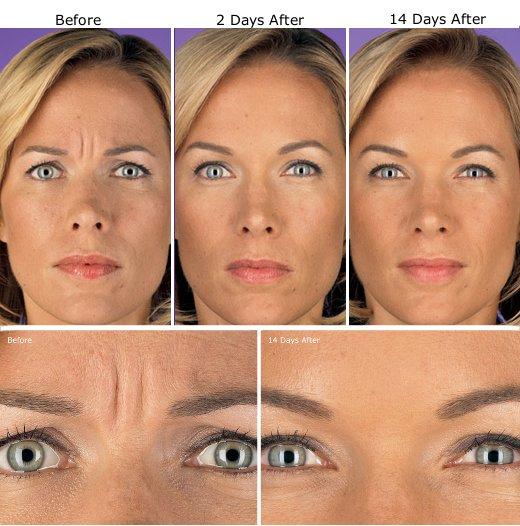 Botox Treatment Etobicoke Wrinkle Injections Toronto
