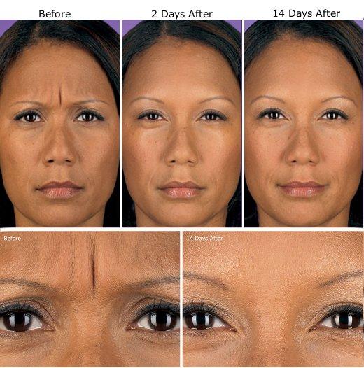 Botox Treatment Etobicoke, Wrinkle Injections Toronto