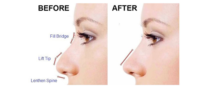 injectable rhinoplasty non surgical nose job toronto