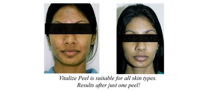 Peels, Laser Treatment for skin