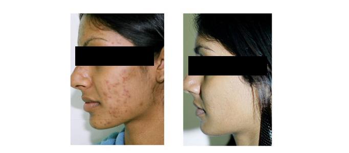 Toronto skin resurfacing