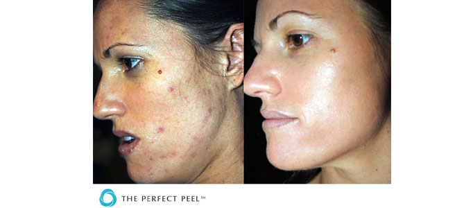 Peels, Laser Treatment for skin