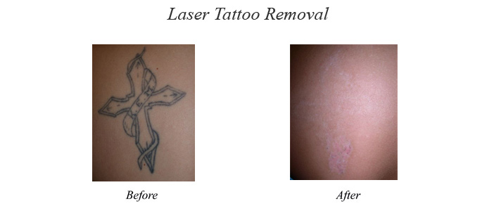 Tattoo Laser Treatment