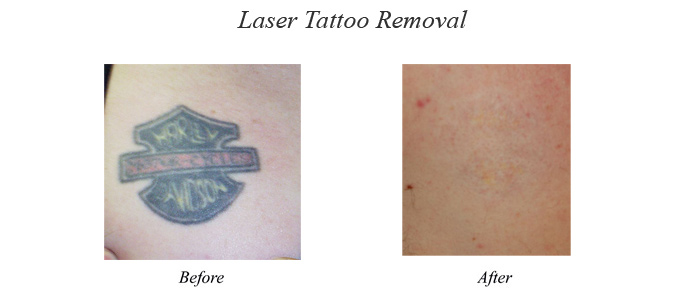Non-Laser Tattoo Removal