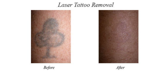 Sun Spot Removal, Tattoo Removal