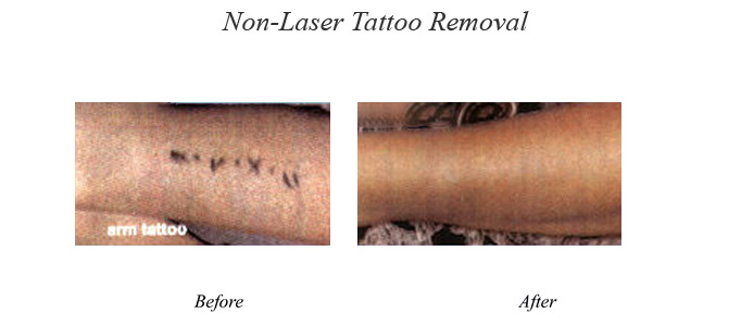 Tattoo Laser Removal, Tattoo Removal Treatment