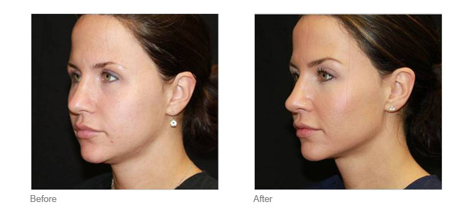 Non-Surgical Skin Tightening Toronto