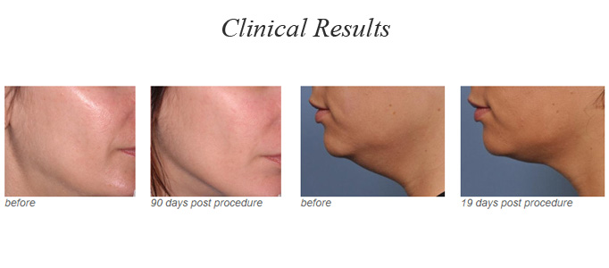 Toronto cosmetic surgeon