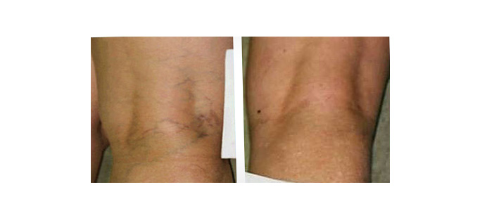 laser therapy for varicose veins
