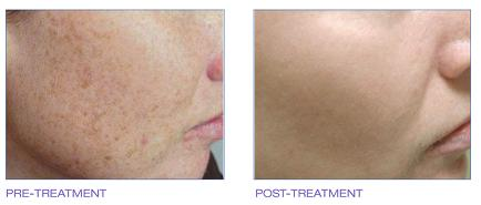 IPL , Peels and Sun Damage, Photorejuvenation