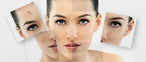 IPL - Photo Rejuvenation