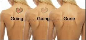 Tattoo Removal and Pigment Removal