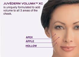 Voluma by Juvederm
