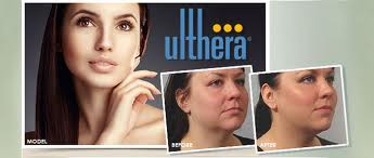 Ultherapy Not Just another Skin Tightening Device