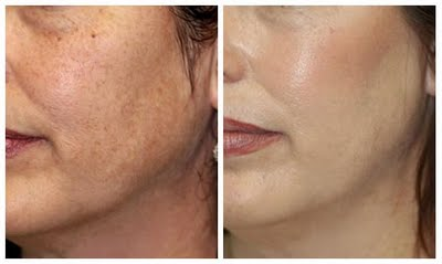 Microdermabrasion Before And After, Microdermabrasion treatments