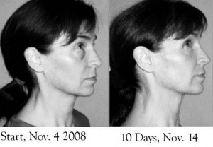 Facial Flex Non Surgical Facelift