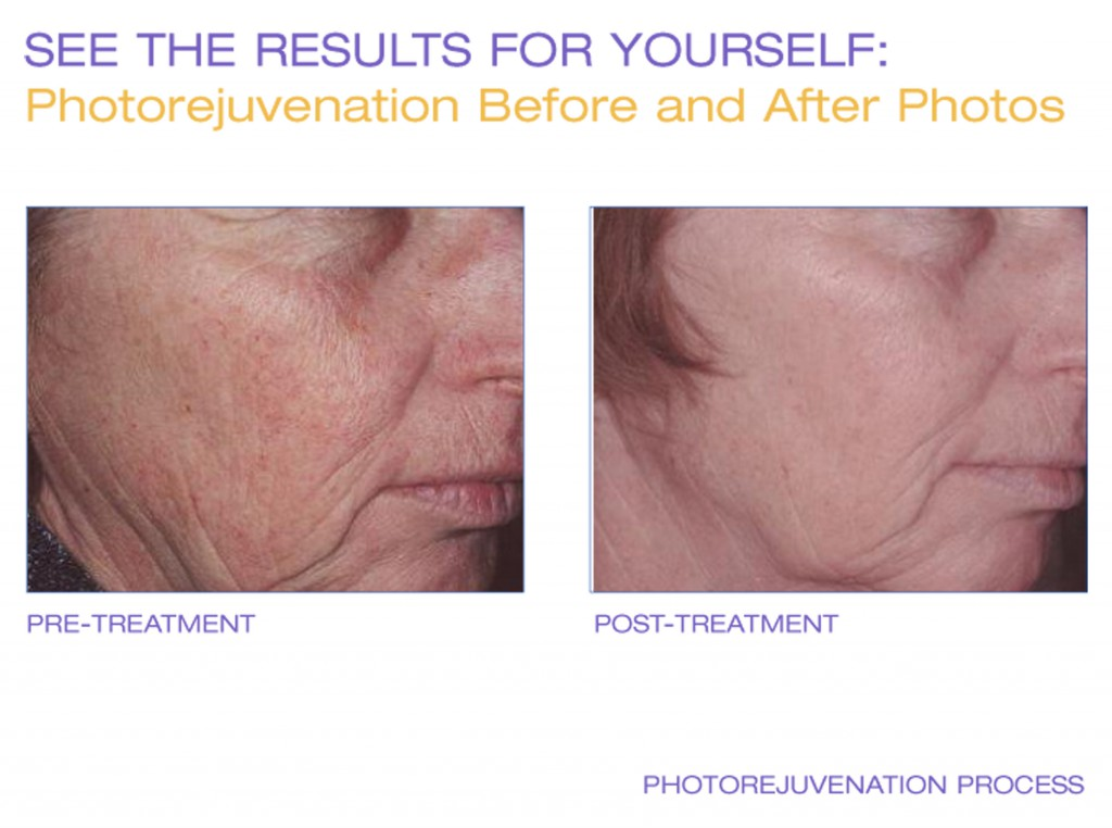 Photorejuvenation, Why IPL and Peels?