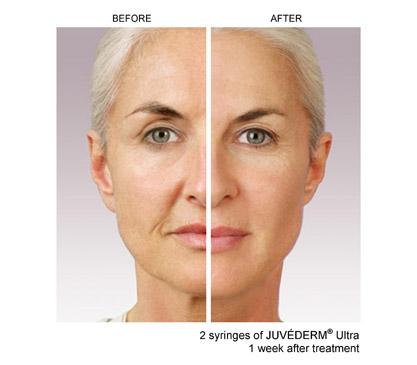 wrinkle fillers Juvederm Ultra